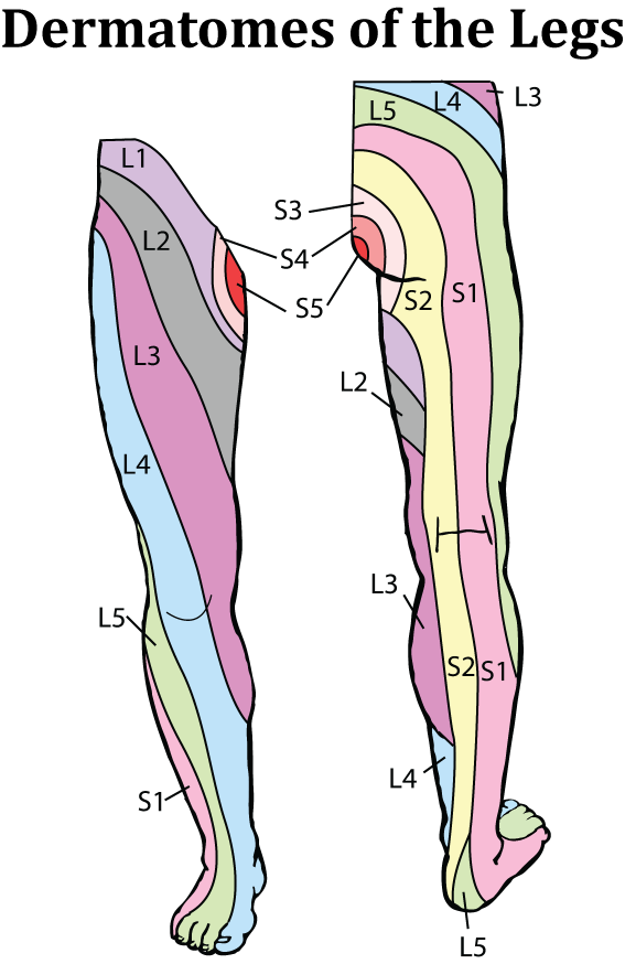 dermatone map with 2 on Kroppsomr V LandRygg Ben Man in addition Anatomy Review The Brachial Plexus additionally Dermatome Poster Small besides 2 in addition Trigeminal Neuralgia.